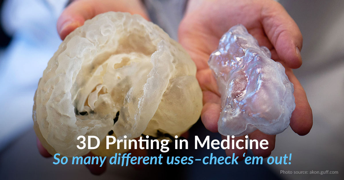 Top 4 Revolutionary 3D Printing Medical Applications