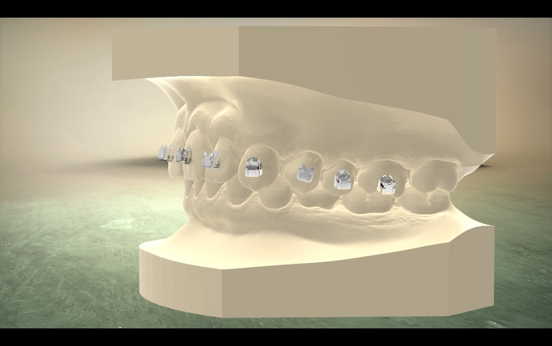 container_digital-orthodontic-model-with-brackets-3d-printing-16583