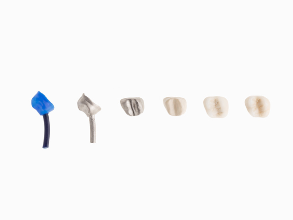 3d printing dental crowns and bridges