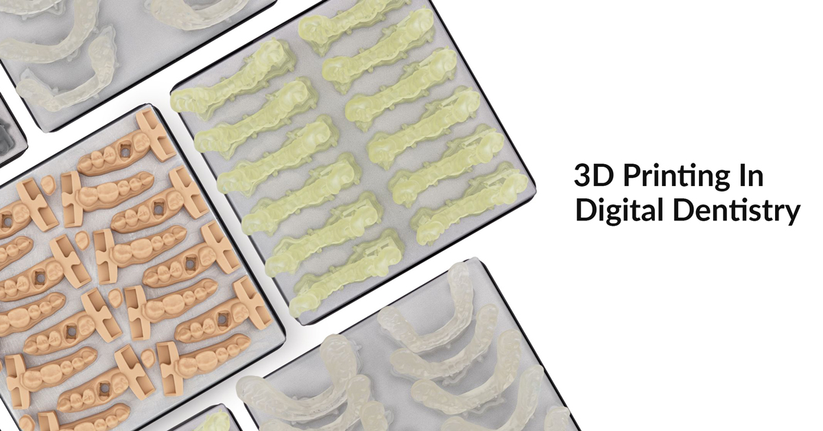 4 Interesting 3D Printing Dental Applications You Should Know